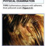 Color Atlas & Synopsis of Pediatric Dermatology